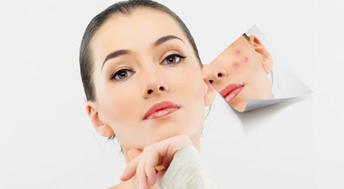 tratamiento natural para el acne