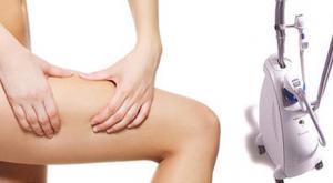 tratamiento reafirmante corporal con radiofrecuencia